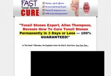 How To Cure Tonsil Stones - How to Cure Tonsil Stones
